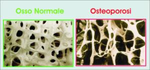 "Alt=""donna osteoporosi"""